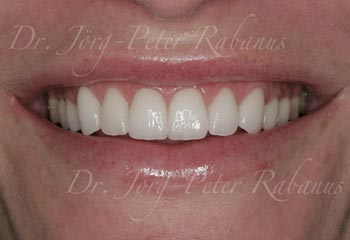 best porcelain veneers for smile design