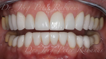 retracted lips after oral rehabilitation with porcelain veneers