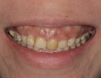 gummy smile tetracycline stained teeth
