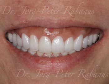 porcelain veneers full mouth rehabilitation san francisco