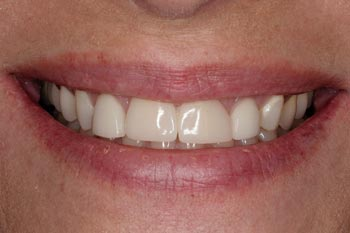 not the best porcelain veneers by other dentist