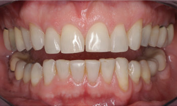 retracted lips before oral rehabilitation with porcelain veneers