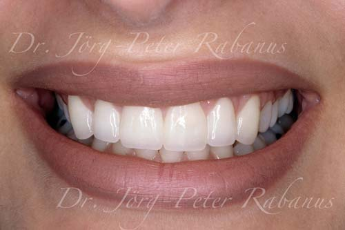 porcelain veneers for small teeth