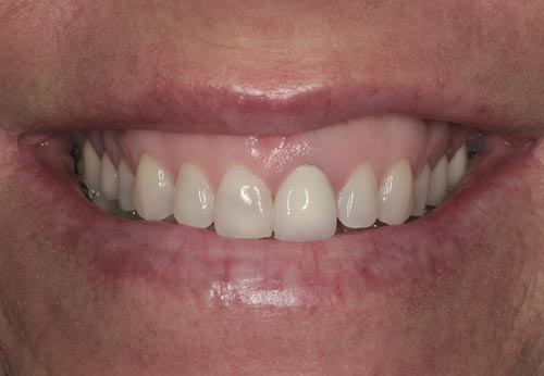 needs best porcelain veneers san francisco
