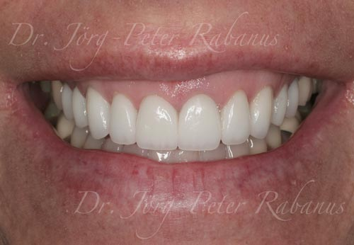 received best porcelain veneers san francisco
