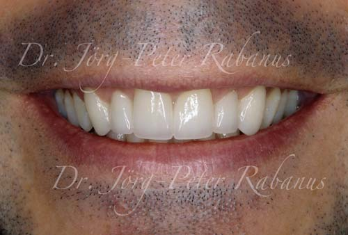 best porcelain veneers san francisco after