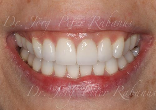 best porcelain veneers look natural