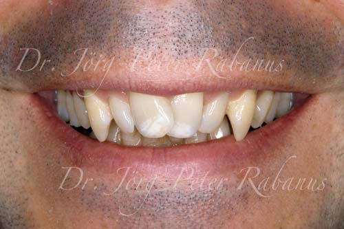 best porcelain veneers san francisco before