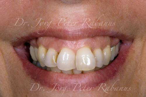 crowded teeth porcelain veneers