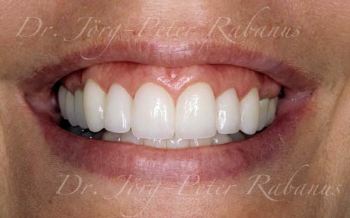 instant veneers dental false natural