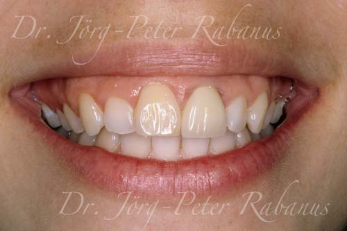 before porcelain replacement for yellow dental restorations