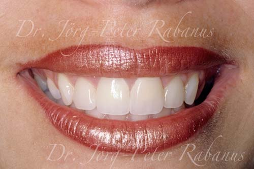 porcelain replacement for yellow dental restorations