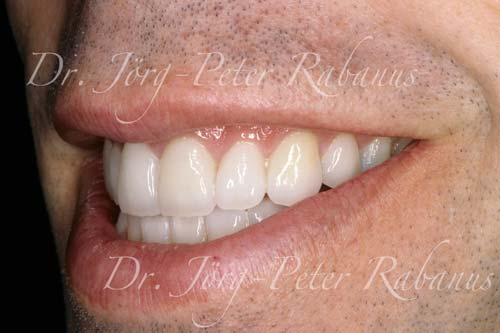 dingy teeth corrected with porcelain laminates