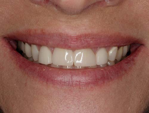 short and wide porcelain restorations