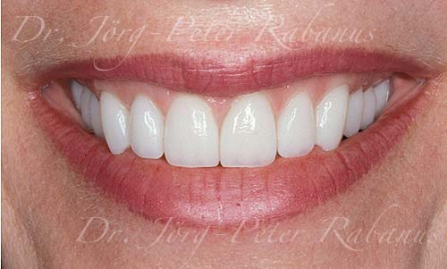 flattened smile line worn teeth porcelain crowns