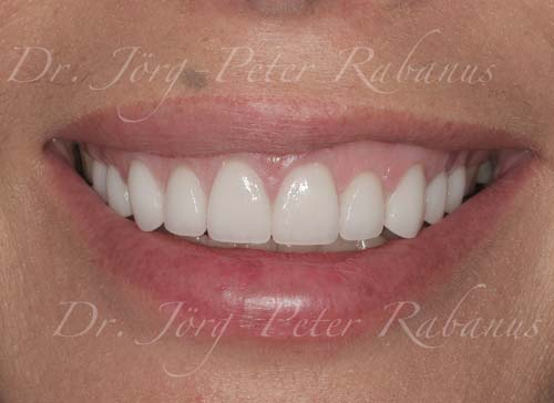 gummy smile and small teeth corrected with cosmetic dentistry
