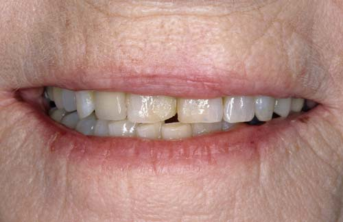 old teeth before smile rejuvenation