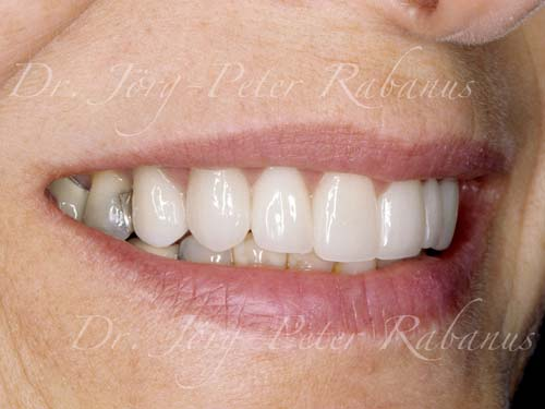 porcelain restorations for old teeth and dental restorations