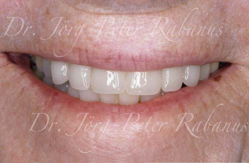 old teeth after smile rejuvenation