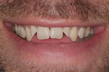 open bite with dingy teeth prior to dental laminates