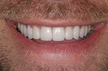 dental laminates corrected open bite