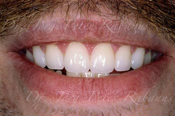 porcelain veneers and gum lift to correct gummy smile