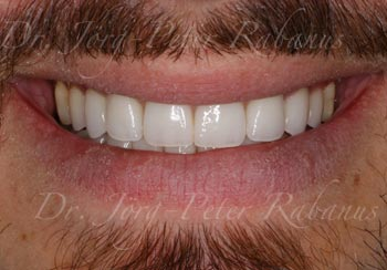 porcelain veneers replaced in San Francisco