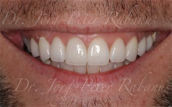 new porcelain veneers san francisco style