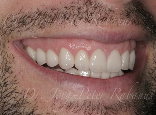 smile design porcelain veneers for gummy smile