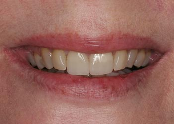 aged teeth prior to smile makeover with porcelain veneers