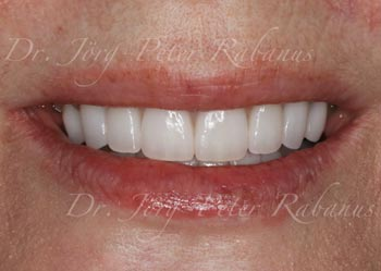 smile makeover with porcelain veneers for aged teeth
