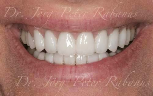 stained and misaligned teeth after smile design