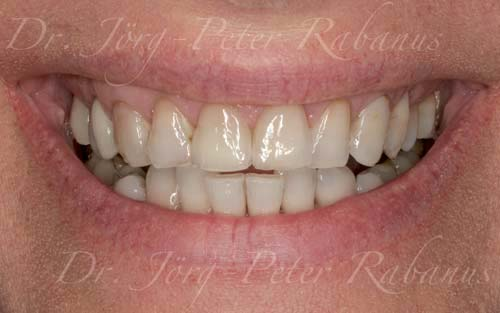 stained and misaligned teeth