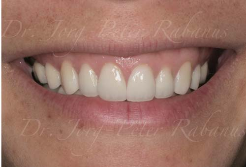 stained teeth with porcelain veneers