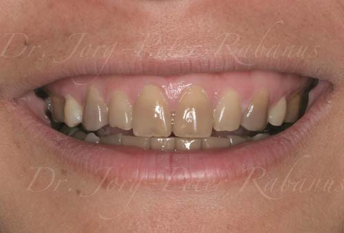 cosmetic dentistry for stained teeth